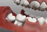 nhổ răng khôn giá rẻ